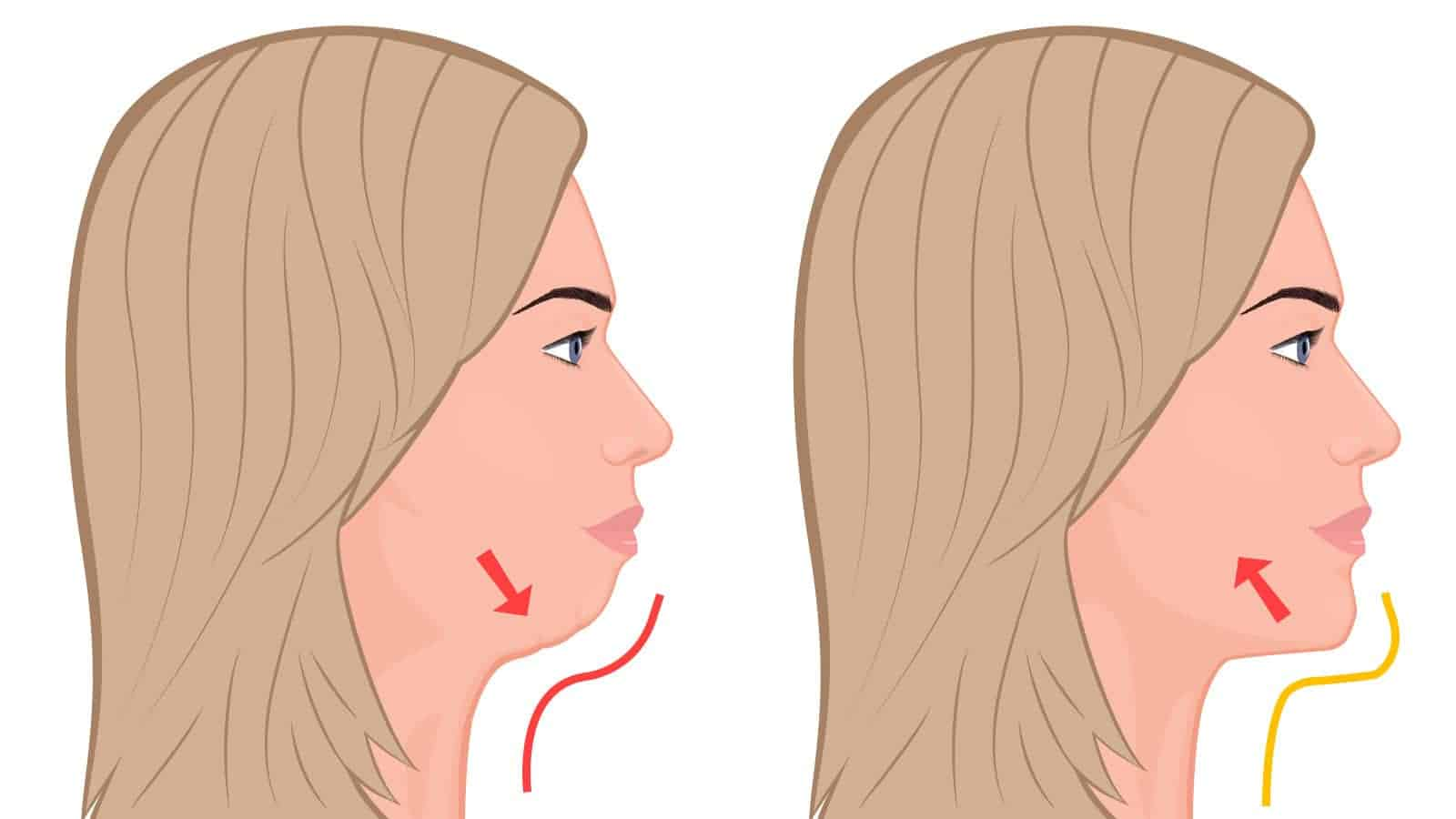 7 Exercises That Remove Double Chin